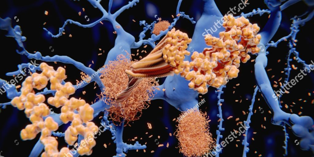 stock-photo-alzheimer-s-disease-the-amyloid-beta-peptide-accumulates-to-amyloid-fibrils-that-build-up-dense-1157052994